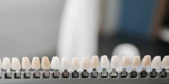 zobni-implantati-cena-in-ponudba